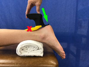 Anterior Glide with the Mobil-Aider